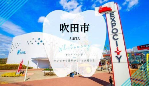 【2021年】吹田市でホワイトニングが安い歯科6選を徹底解説!