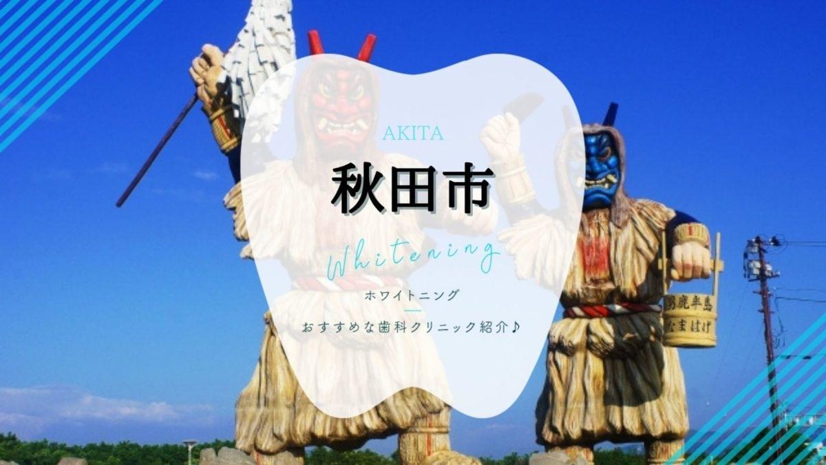 秋田でホワイトニング