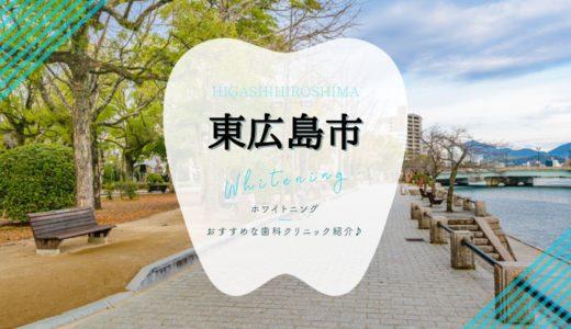 【東広島市】ホワイトニングにおすすめ歯科クリニック6選!【2021年】