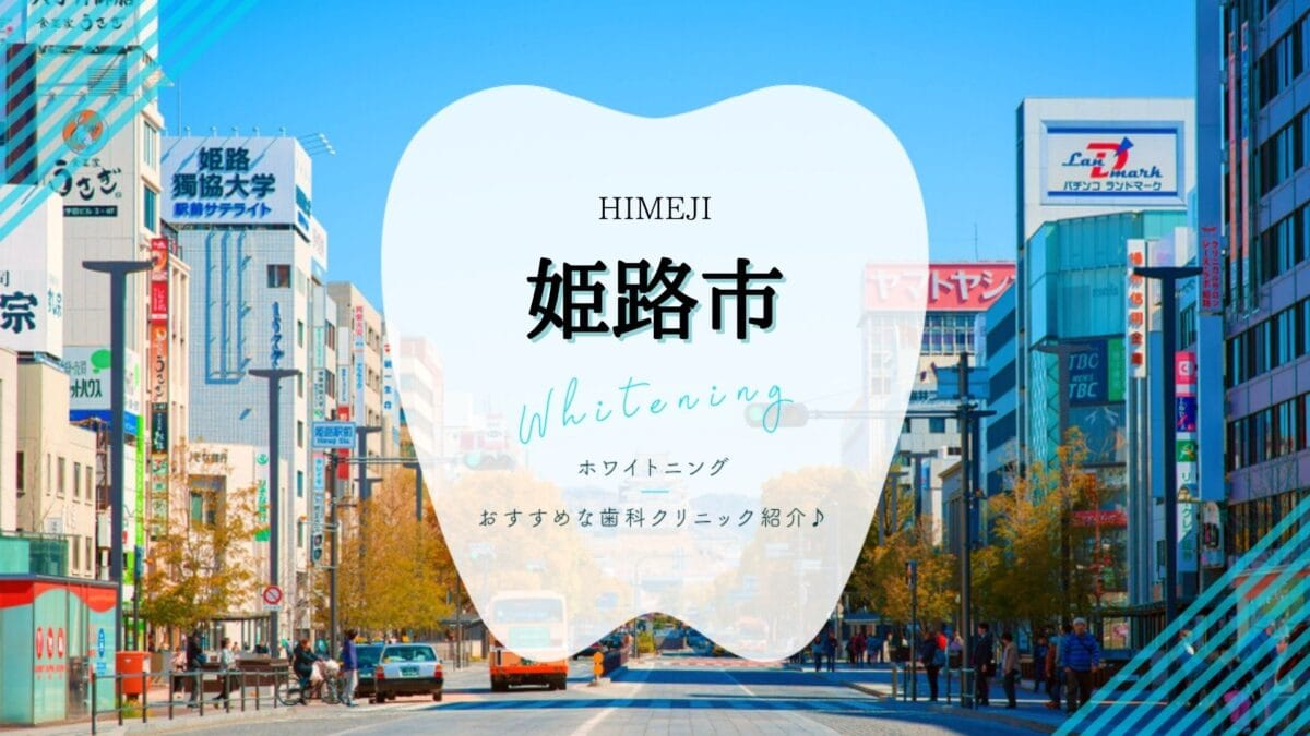 姫路でホワイトニング