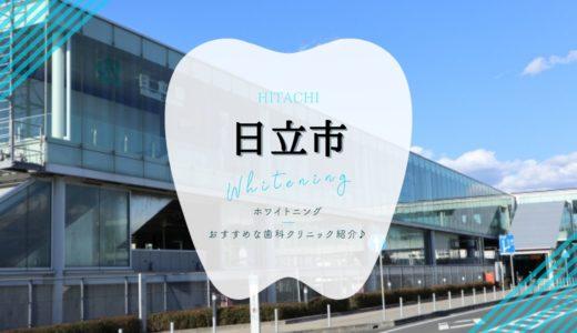 【日立市】ホワイトニングでおすすめな歯科クリニック3選!