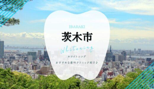 【茨木市】ホワイトニングおすすめ歯科5選!【2021年版】