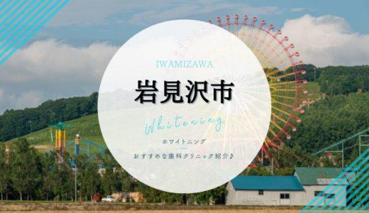 【岩見沢市】ホワイトニング|おすすめ歯科クリニック4選!