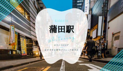 【蒲田駅周辺】ホワイトニングでおすすめな歯医者3選!【2021年版】
