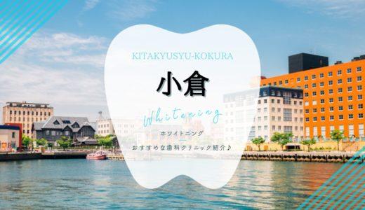 【2021年版】小倉駅周辺でホワイトニングおすすめ歯医者4選!