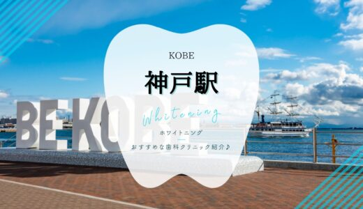 【神戸駅周辺】ホワイトニングが安いおすすめ歯科5選!