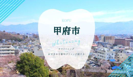 【2021年版】甲府市でホワイトニングおすすめ歯科院5選!