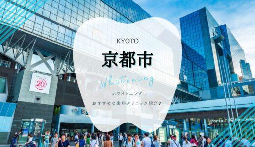 【京都市】ホワイトニングにおすすめな歯科7選!【2021年版】