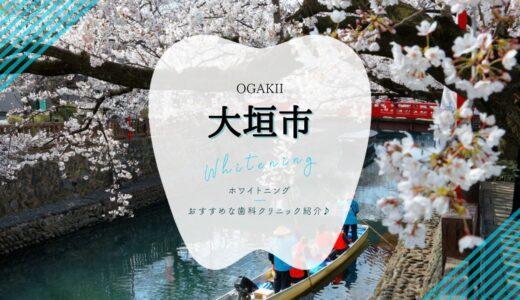 【2021年版】大垣市でホワイトニング安い歯科5選!