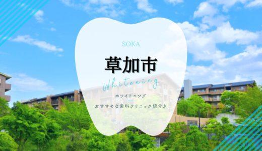 【2021年版】草加市のホワイトニングおすすめ歯科クリニック6選!