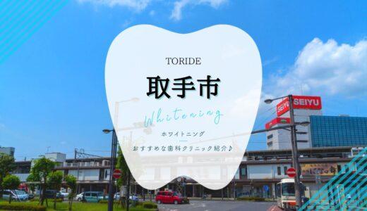 【2021年版】取手市のホワイトニング安いおすすめ歯科5選!