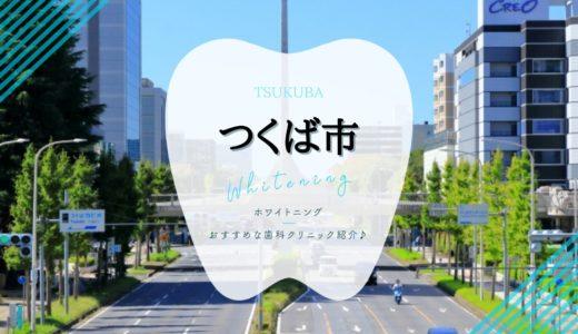【2021年版】つくば市のホワイトニングおすすめ歯科8選を解説!