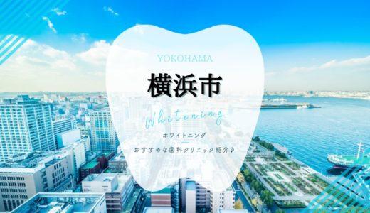 【2021年版】横浜市のホワイトニング安いおすすめ歯科8選!