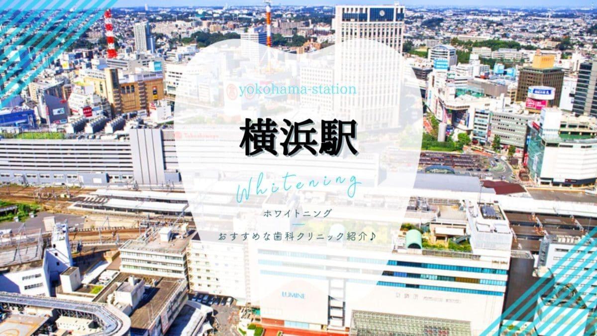 横浜駅でホワイトニング
